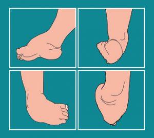 Clubfoot Deformaties