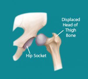 Developmental Dysplasia of hips