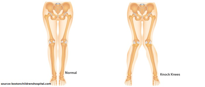 causes of knock knees