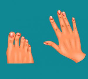 Syndactyly