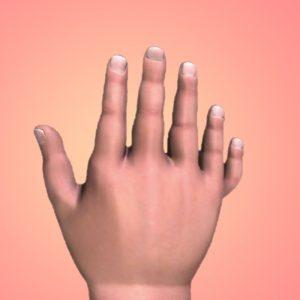Pediatric Hand Disorder